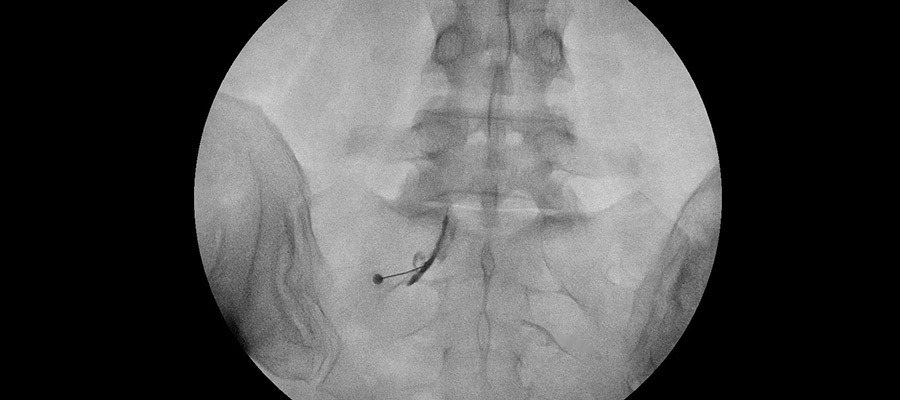 infiltraciones en la columna vertebral