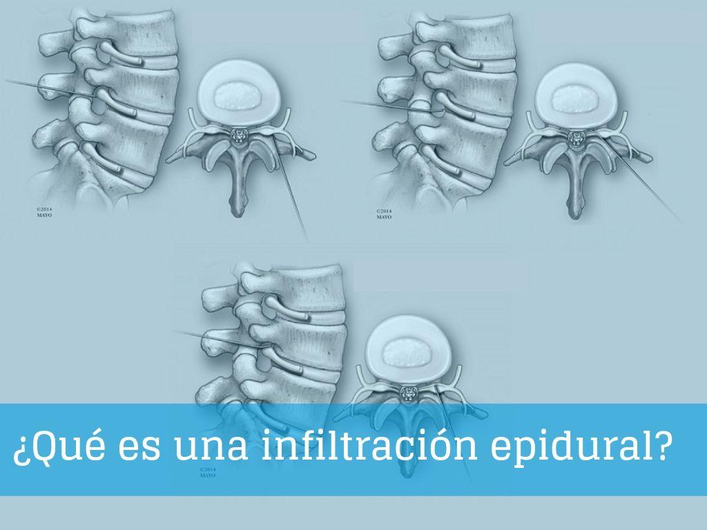¿Qué es una infiltración epidural y cuándo es recomendable?